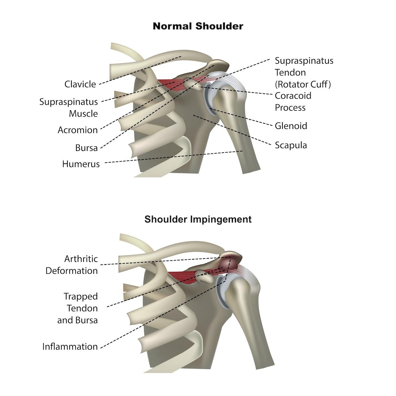 Shoulder Impingement, What Is Shoulder Impingement?, Cycling, Shoulder Pain, Shoulder Conditions